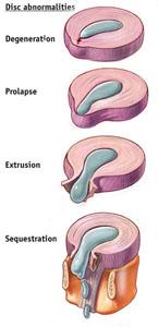 Disc Extrusion